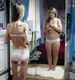 20150522185906-anorexia.jpg